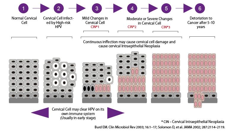 ENG_vcare_pms_HPV_CIN_cycle